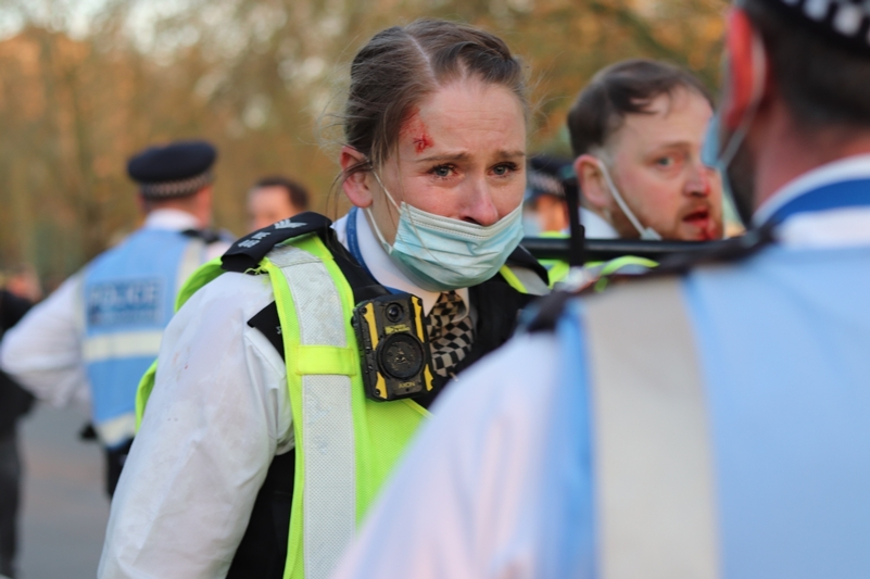 Injured Met officers at the Hyde Park protest. Photo credit: HASSIMAGE/BACKGRID