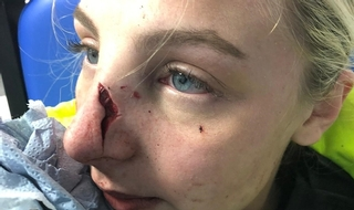 Community service order for youth who left PC needing 17 stitches