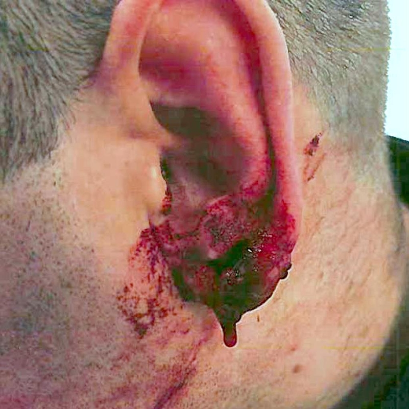 Bloody mess: The bitten ear of PC Christopher Birchall
